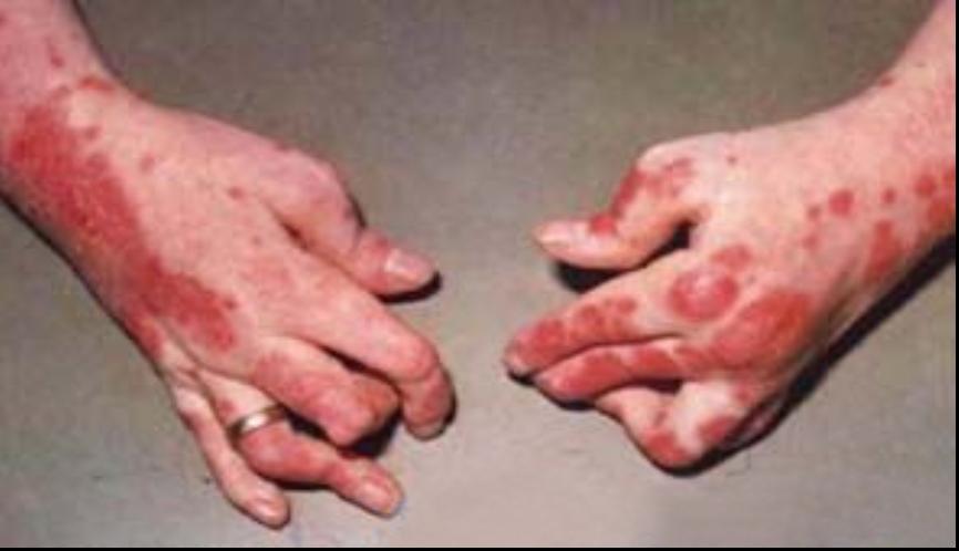 关节病型牛皮癣对患者有哪些危害