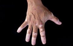 中老年牛皮癣患者吃饭要注意什么呢